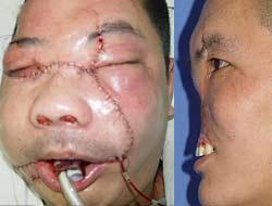 Çin'de yüz nakli görüntüleri